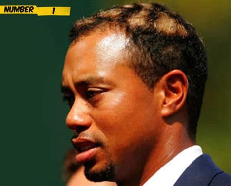 cut patches ethopia hir 10 craziest haircuts in sports
