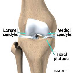 tibial osteotomy orthogate