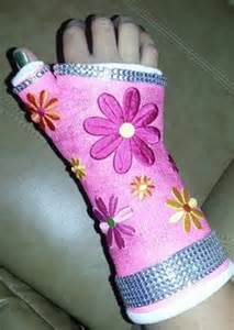 Decorate Your Cast by Injured Arm Or Leg Things To Make You Smile On