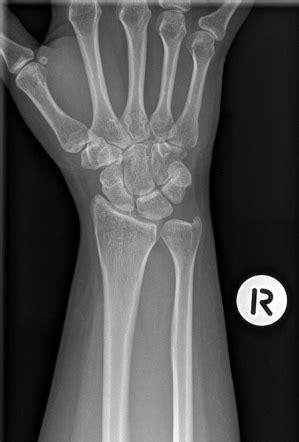 Normal wrist x-rays | Image | Radiopaedia.org
