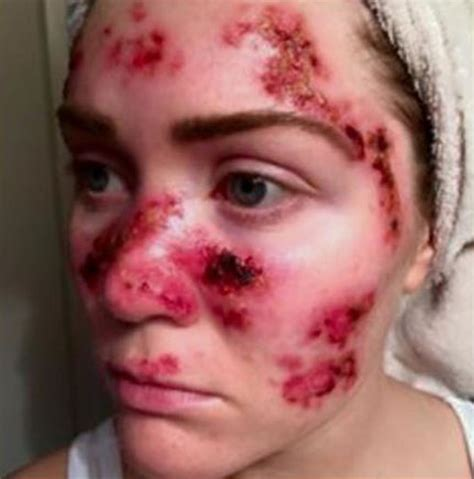 tanning bed skin cancer tawny willoughby skin cancer pic young mom warns about