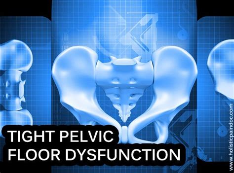 Tight Pelvic Floor Muscles 1000 images about pelvic floor tension myalgia pftm on