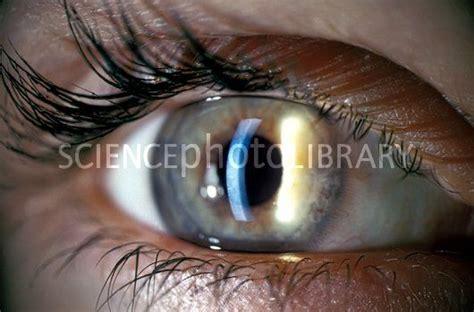 slit l eye exam slit l eye examination stock image c010 9555