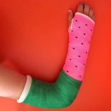 leg cast colors best colour for an arm cast watermelon alex fulton