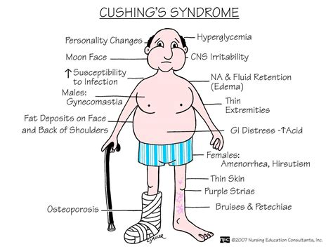 cushings disease chapter 65 nursing 3122 with holden at king college studyblue
