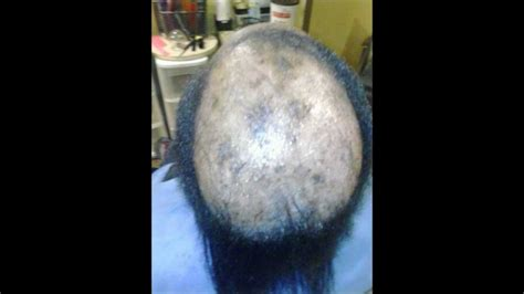 can you get sisterlocks with bald spots how to braid a bald head youtube