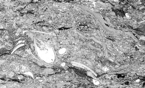 limestone thin section thin section of hard gray limestone worland limestone