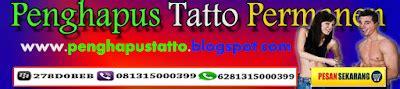 Obat Penghapus Tato penghapus tatto permanen cara mudah menghapus tatto