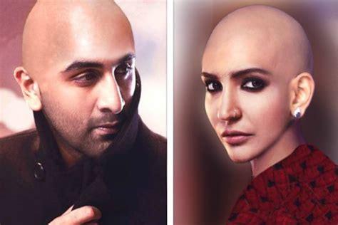 ranvir kapor doing hair transplant anushka sharma bald look in ae dil hai mushkil headshave