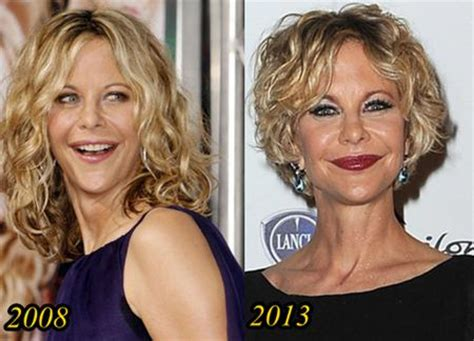 when did meg ryan have a face lift meg ryan plastic surgery disaster before and after