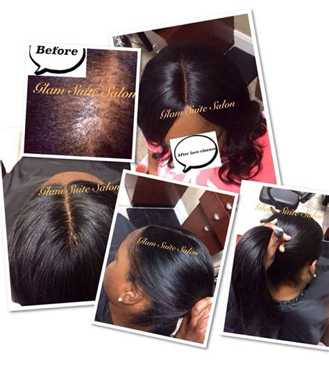 hair pieces for thinning hair crown area hair weave for thin hair in crown area 17 best images
