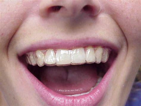 Harga Clear Braces retainers riviera orthodontics