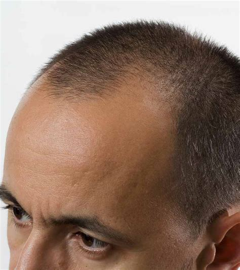 hair transplant in australia what are the factors that hyderabad nawabs 2