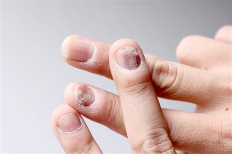 Tofacitinib Also Search For Xeljanz Reduces Nail Psoriasis In Phase 3 Trials Of Plaque Disease