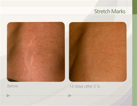 With Marks by Skinstation Stretch Marks Prevention And Cure
