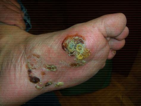 blisters on feet can be due to eczema psoriasis or