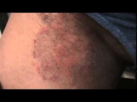 conejera en la piel hongo en ingle intertrigo candidi 225 sico youtube