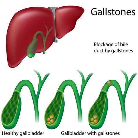gallstones and gallbladder disease university of what does a gallbladder attack feel like university