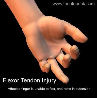 Flexor tendon injury healing