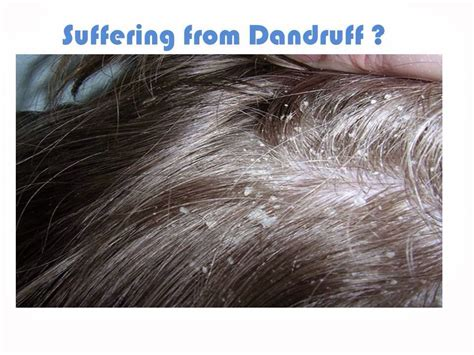 Can Hair Dryer Cause Dandruff musely