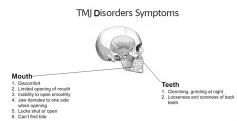 signs of jaw bone disease ehow ehow how to temporomandibular joint tmj causes symptoms and