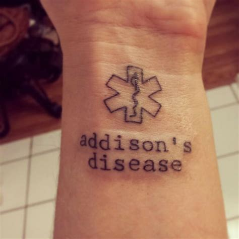 medical alert tattoo s disease medic alert tattoos