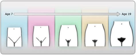 pubic hair comparisons in women female puberty becoming a girl