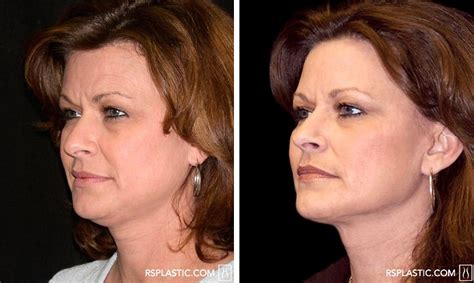 celebrities who have had a neck lift celebrities that had neck lift surgery why is it worth it