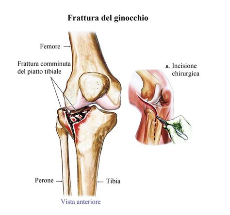 infiammazione ginocchio interno frattura ginocchio sintomi intervento