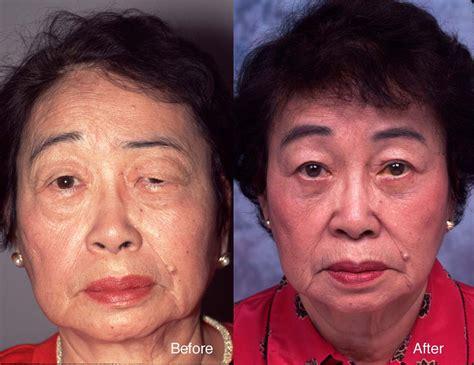 eyebrow lift korea case studies eyelid surgery beverly hills lidlift