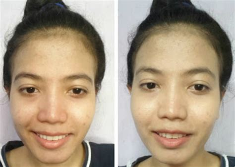 Harga Dd Wardah Untuk Kulit Berjerawat manfaat wardah 30 merk sabun muka terbaik untuk
