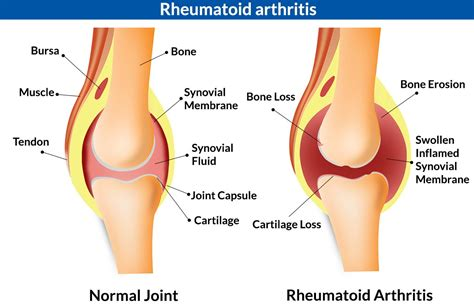 healthy fats for joints 5 major causes of knee joint inflammation infection