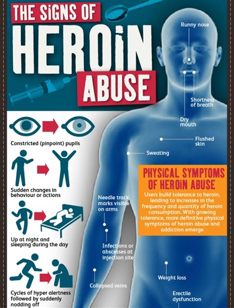 Detox Heroin Symptoms by The Signs Of Heroin Abuse Infographic