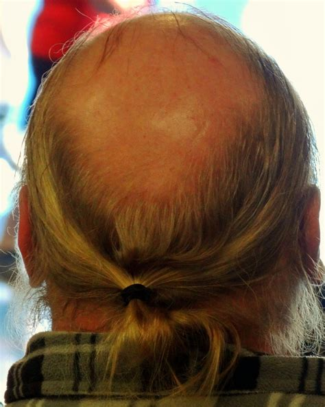 ponytails for bald men four year transformation all from learning how to take