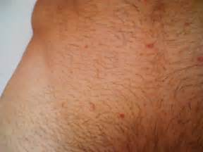 manscaping pictures groin herpes on pubic area