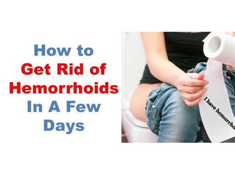 external hemorrhoids welcome to israel gist s blog see what top celebrity used