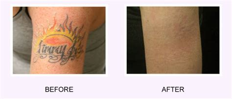 tattoo removal plymouth i want my removed i regret my