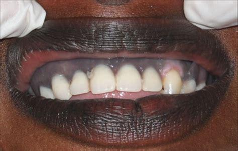 gum tattoo gum www imagenesmy