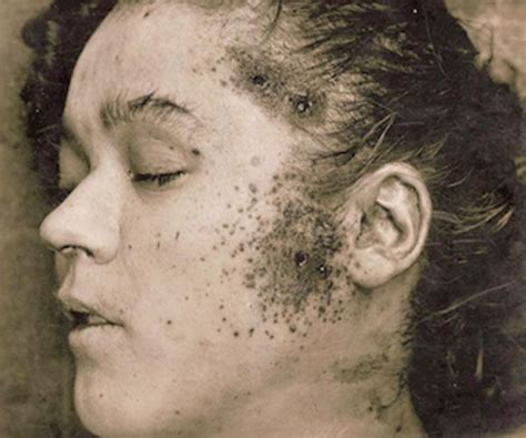 autopsies of famous people 249 best images about scary scarier scared on pinterest