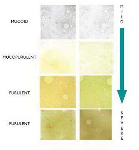 color of sputum sputum pathology bronchiectasis