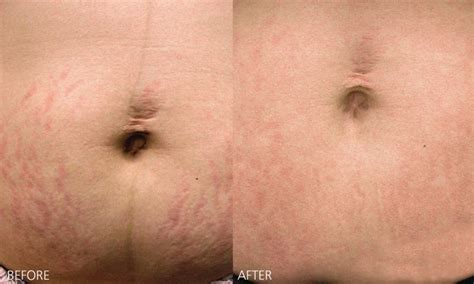 Bio Stretch Marks bio review everything you need to