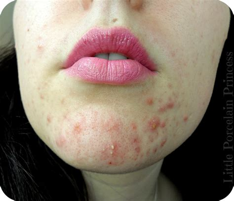 acne on chin image gallery minor acne