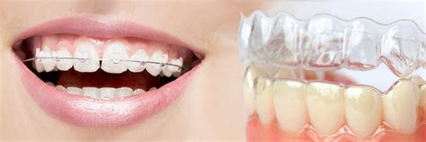 invisalign vs traditional braces invisalign vs traditional braces which works best