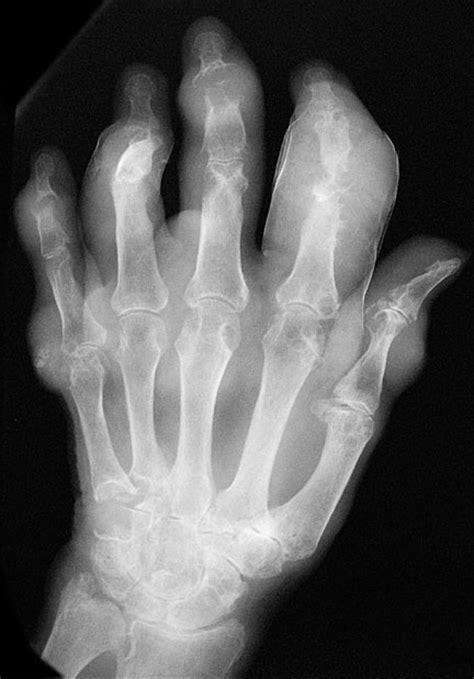 Tophaceous gout. Causes, symptoms, treatment Tophaceous gout