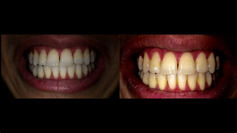 teeth whitening  day challenge opalescence review