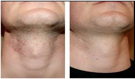 preventing ingrown hairs on neck after haircut how to prevent razor burn men health india health and