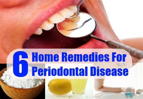 cures for periodontal disease hairstyles