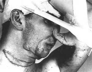 syphilis blindness how surgeons used to perform nose during the