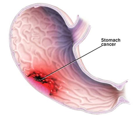 cancer symptoms cancer treatment symptoms of stomach cancer in signs