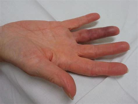 acute blue finger related keywords acute blue finger